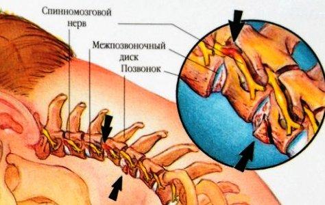 Мениск коленного сустава можно ли греть